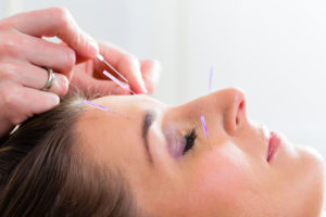 Therapist setting acupuncture needles on woman in course of acupuncture treatment
